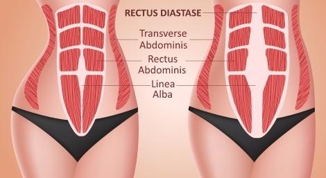 Mavetræning efter fødsel - Rectus Diastase